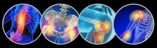 Боли в суставах: причины, лечение, болезни
