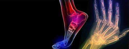 Реактивный артрит – симптомы и лечение