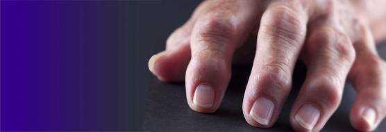 Псориатический артрит – лечение, симптомы, фото