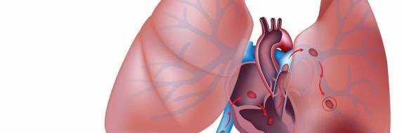 Тромбоэмболия легочной артерии – лечение, симптомы и диагностика