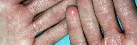 Экзема на руках – лечение, фото начальная стадия, причины, мазь