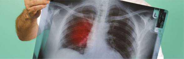 Рак легких: симптомы и признаки, лечение ранней и 3, 4 стадии, прогноз