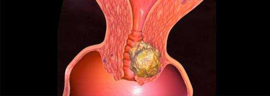 Рак шейки матки: симптомы и признаки, лечение 1-4 стадии, прогноз
