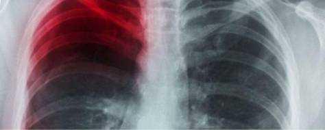 Пневмосклероз легких – что это такое, как лечить, диффузный, базальный