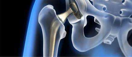 Эндопротезирование тазобедренного сустава – реабилитация и боли после