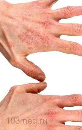 Атопический дерматит на руках у взрослого