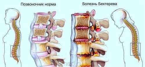 Изменения в позвоночнике при болезни Бехтерева