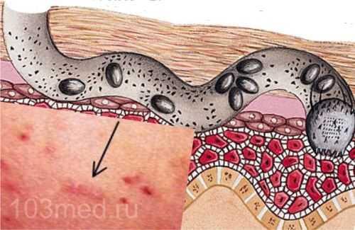 Продвижение клеща и откладывание личинок