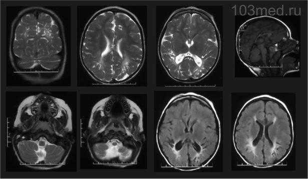 Результат МРТ головного мозга