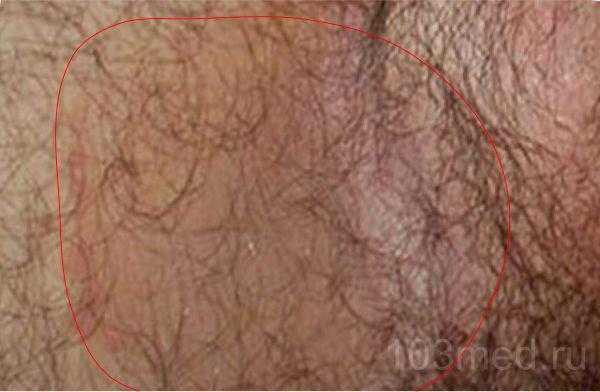 Паховая эпидермофития у мужчин