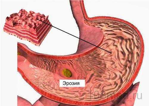 Эрозия на слизистой желудка