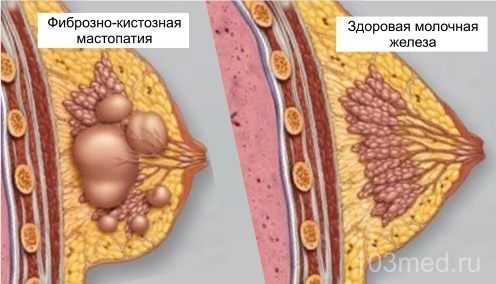 Как выглядят фиброзно-кистозные разрастания