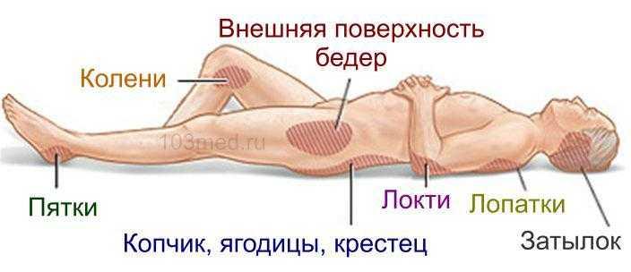 Схема пролежней у лежачих больных