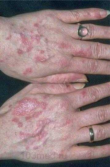 Геморрагический васкулит на руках у взрослого