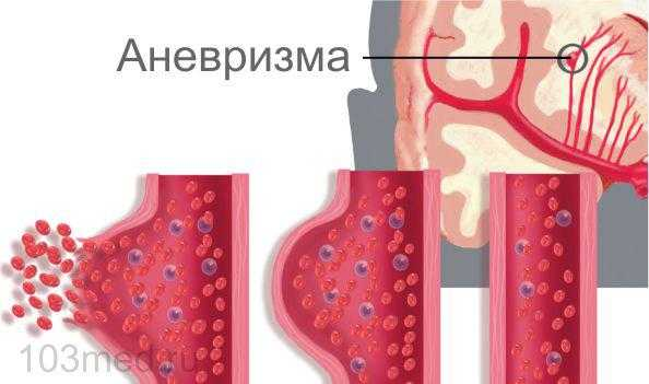 Аневризма - одна из причин геморрагического инсульта