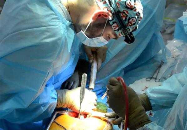 Ход операции по эндопротезированию