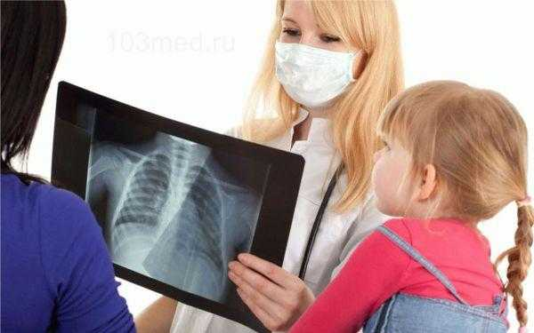 Симптомы и лечение детей от туберкулеза