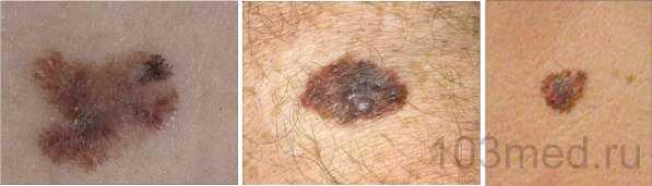 Фотографии развития меланомы