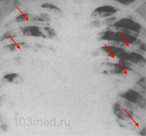Как выглядят метастазы в легких на рентгене