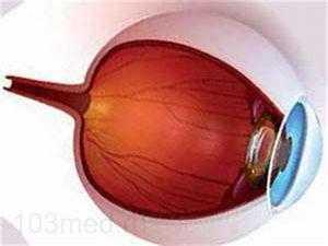 Отслоение сетчатки и проблемы с глазами