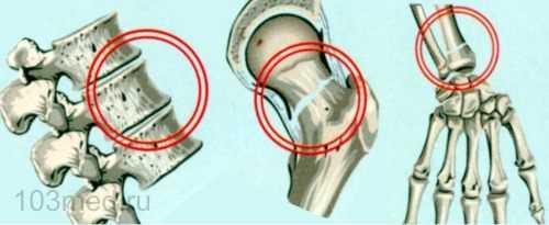 Переломы суставов, позвонков, бедра