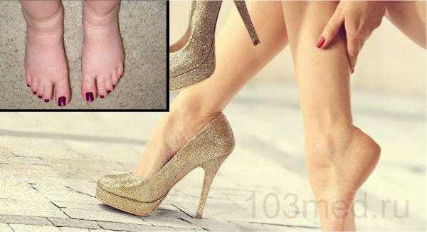 Причины почему отекают ноги у женщин