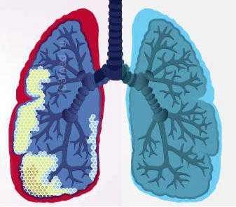 Что происходит с легким при пневмосклерозе
