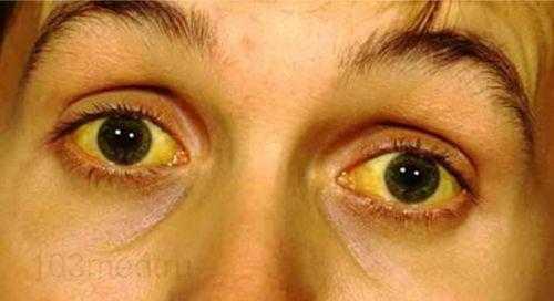 Признаки повышенного билирубина на лице