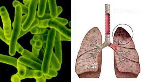 Палочка Коха - возбудитель туберкулеза