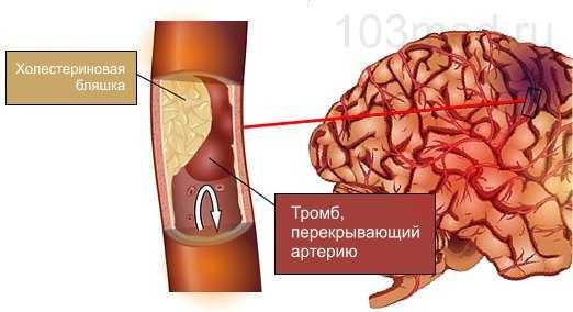 Тромб и холестериновая бляшка блокируют кровоток