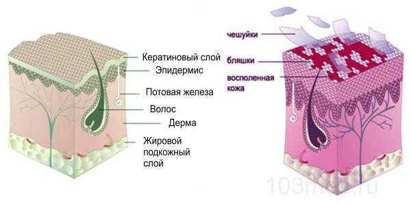 Схема псориаза в волосистой части головы