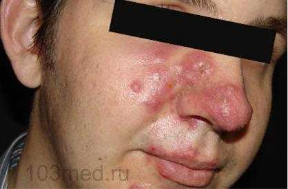 Розацеа на лице - основные симптомы и признаки