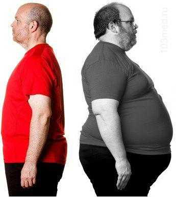 Ожирение один из симптомов сахарного диабета 2 типа