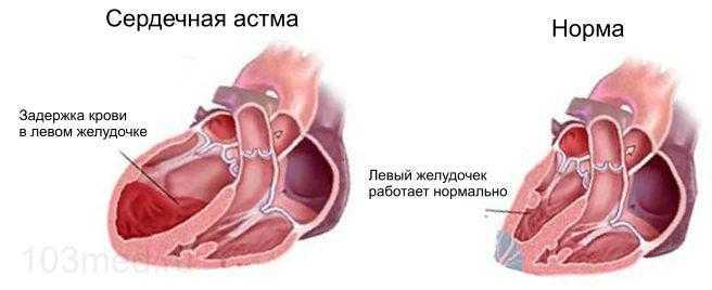 Сердечная астма - задержка крови в левом желудочке