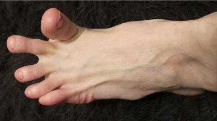 Сводит пальцы на ноге - в чем причина