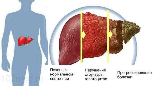 Токсический гепатит печени