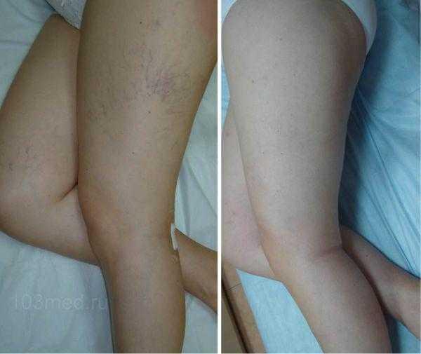 Тромбофилия на ногах у беременных в виде варикоза