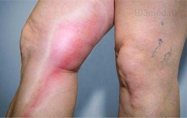 Последствия тромбофилии на ногах
