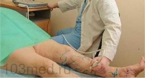 Фото: лечение тромбоза