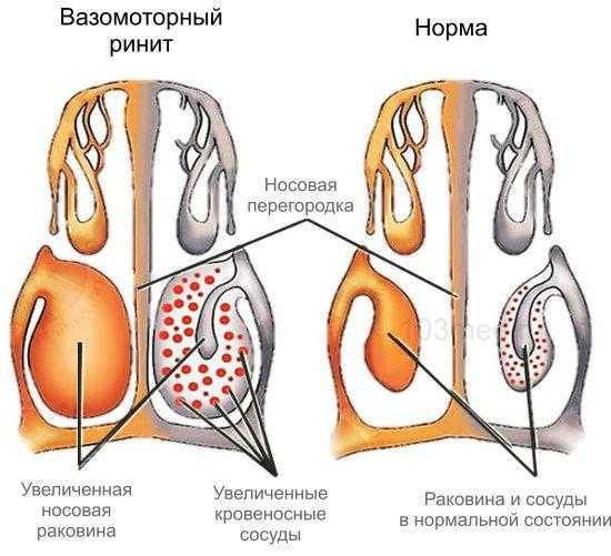 Причины вазомоторного ринита