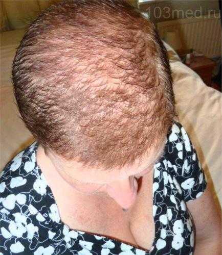 Как выглядят выпадающие волосы при химиотерапии