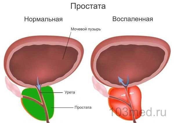 Воспаленная и нормальная здоровая простата