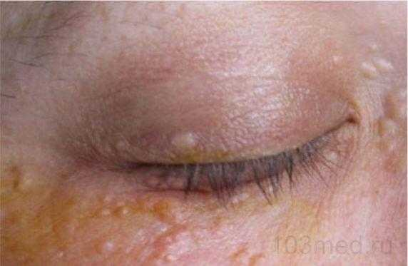 Жировики на лице под глазами