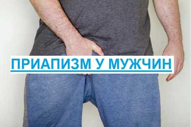 причины приапизма у мужчин
