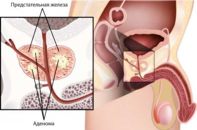 мелкоацинарная аденокарцинома предстательной железы