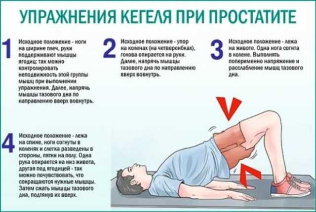 упражнения кегеля для мужчин после удаления рака простаты