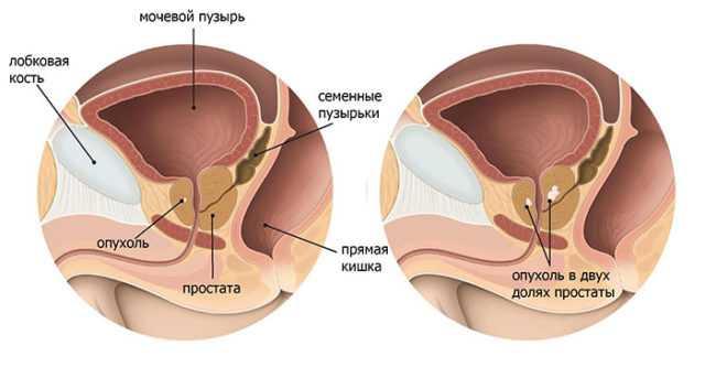 киста предстательной железы у мужчин лечение