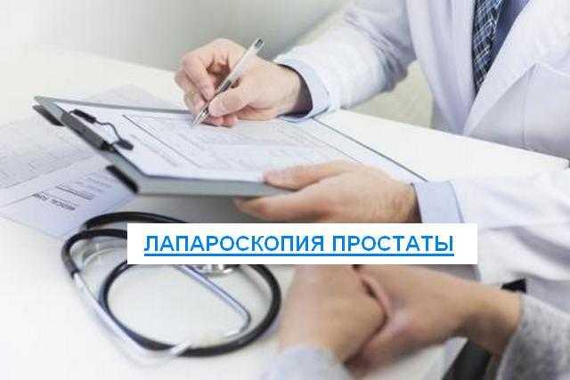 лапароскопия простаты