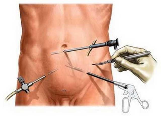 лапароскопия простаты при раке простаты
