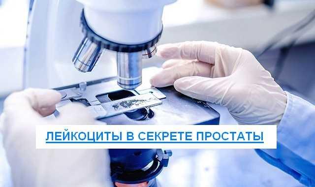 лейкоциты в секрете простаты
